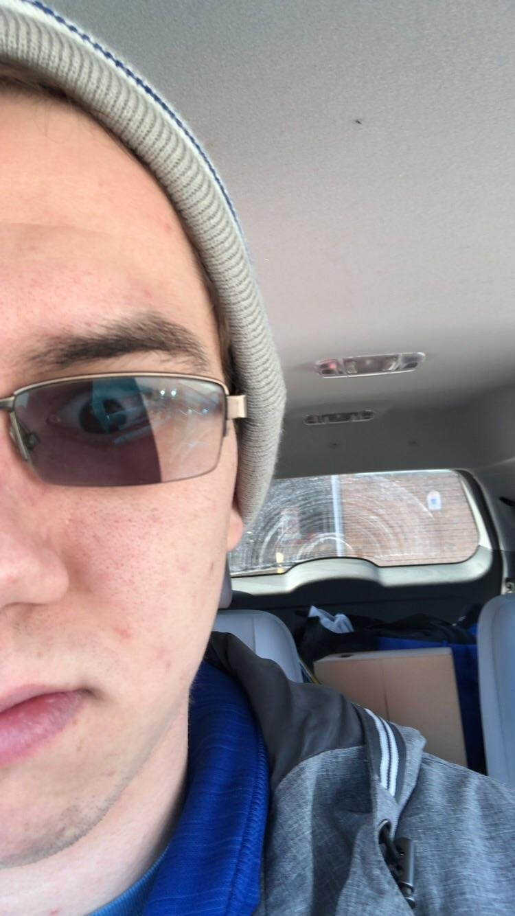 Memes My Transition Lenses Were Left In Half Sunlight While I Was Gone Funny Pictures
