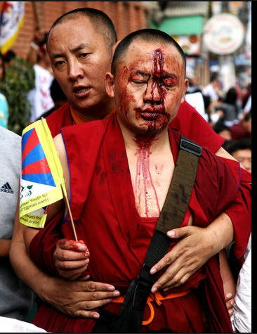 Look at what Chinese militants did to protesting Buddhists. We will not be censored.